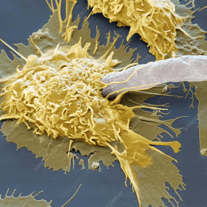 Macrophage attacking parasite, SEM