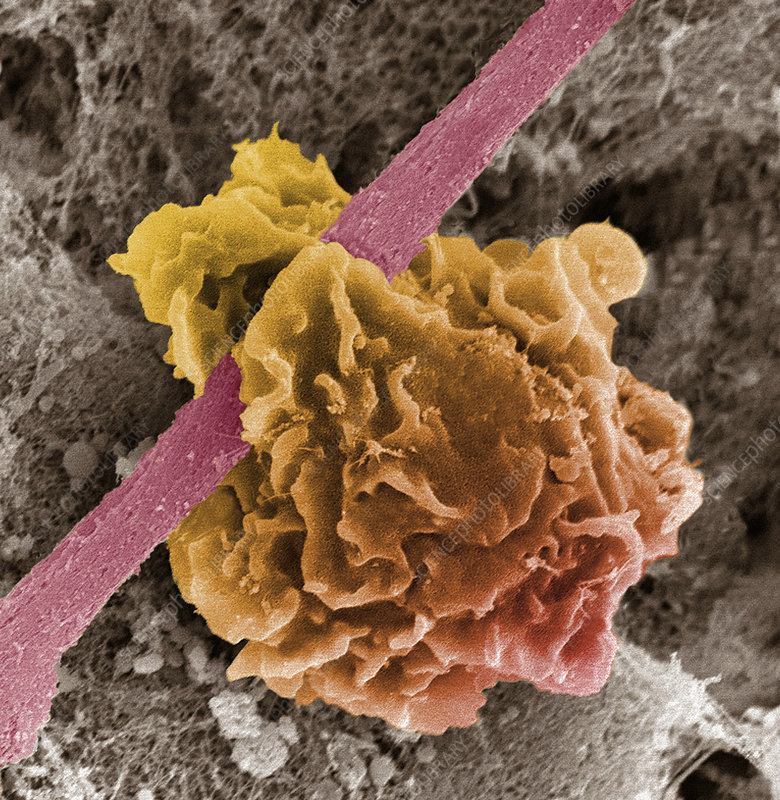 Macrophage ingesting debris, SEM