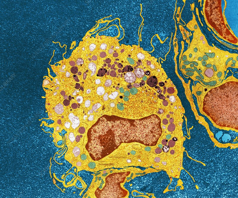 Macrophage cell, TEM