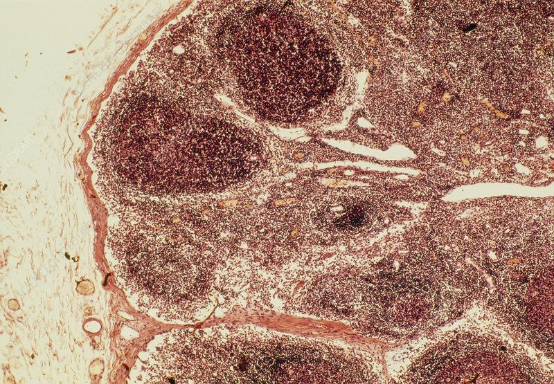Light micrograph of a healthy human lymph node