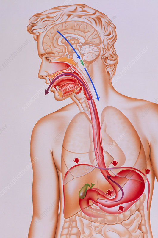 Artwork of vomiting mechanism in human body