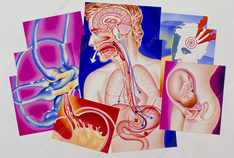 Artwork of vomiting reflex & causes of nausea