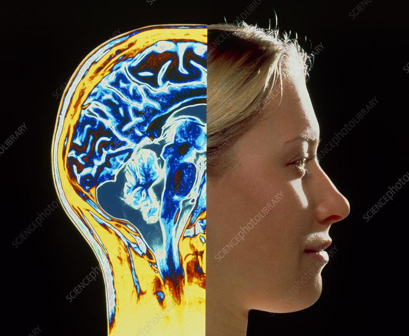 Coloured MRI scan of brain superimposed on head