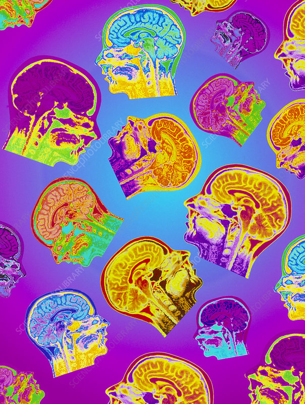 Abstract coloured MRI scans of the human brain