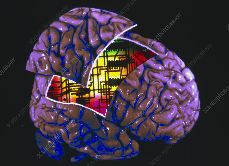 Colour 3-D MRI brain scan with circuit board in it