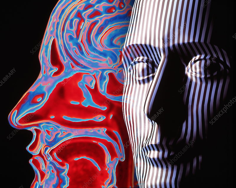 Artwork of a face and an MRI scan of a head