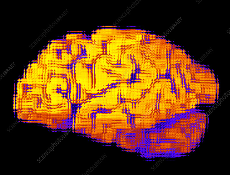 Abstract artwork of human brain seen from the side