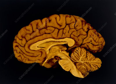 Median section through a human brain