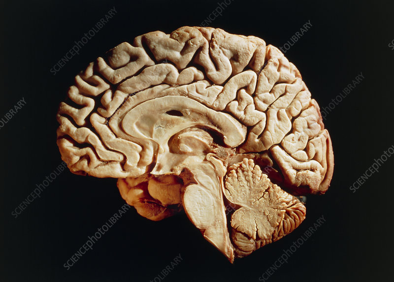 Medial view of the right hemisphere of the brain