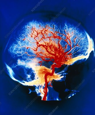 Cerebral arteries, X-ray
