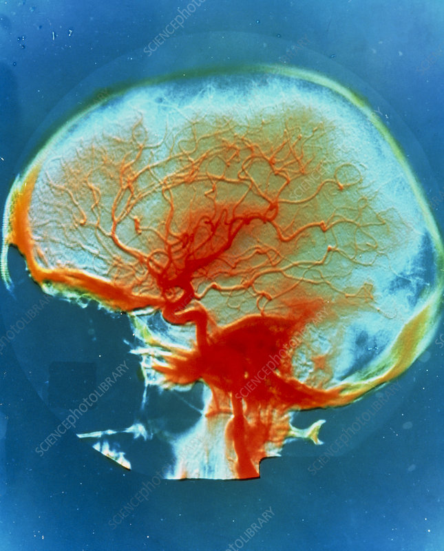 False-colour arteriograph of the human head