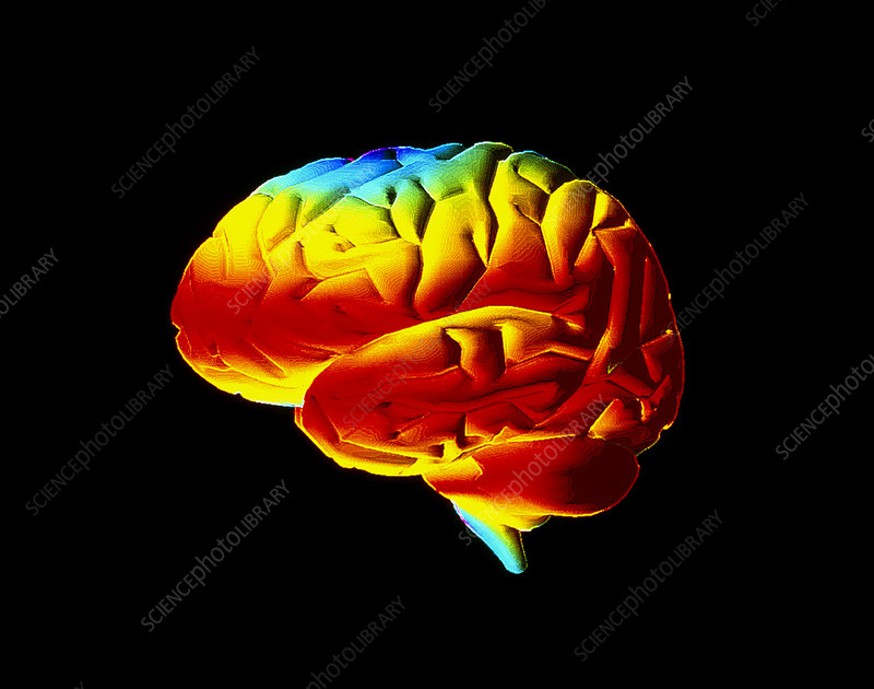 Computer graphic image of a normal brain