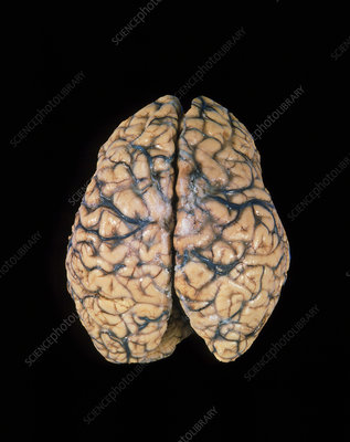 Top view of a healthy human brain