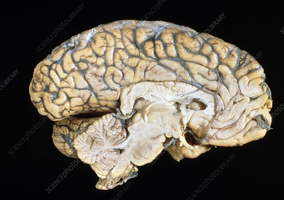 Side view of the anatomy of the human brain
