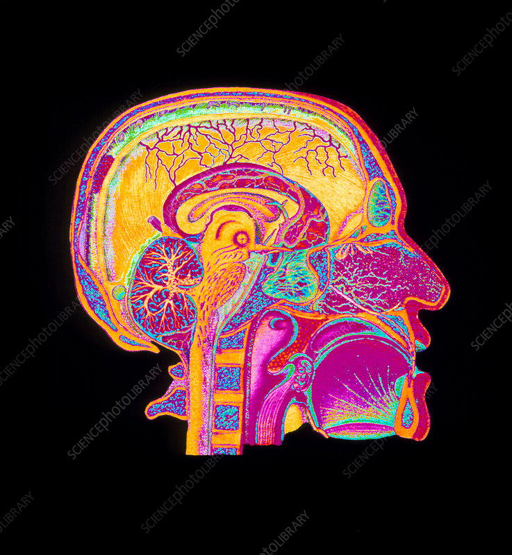 Coloured illustration of sectioned brain in head