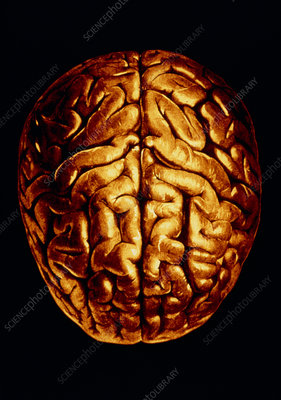 Computer-enhanced image of brain, seen from above