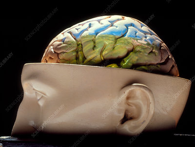 Model of a human brain in a sectioned skull