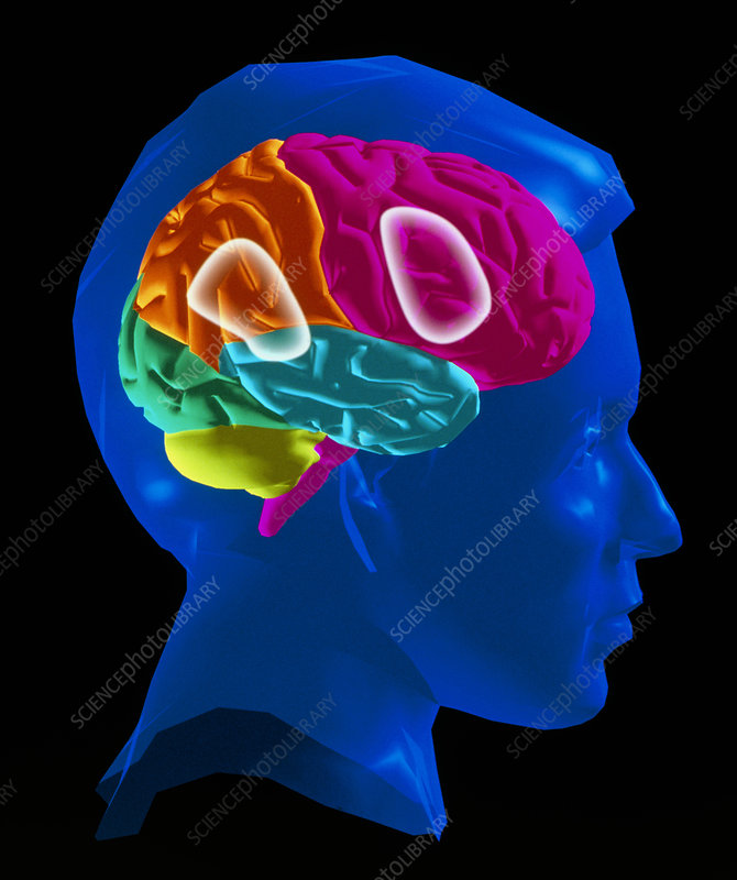 Computer artwork: human brain showing speech areas