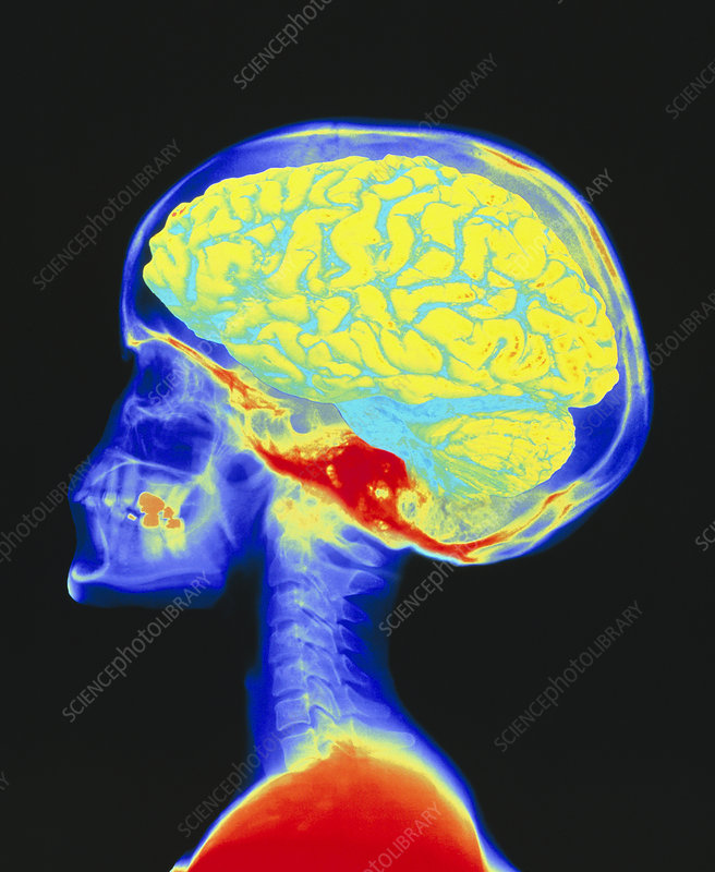 Brain superimposed on colour X-ray of human skull