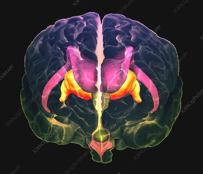 Brain structures, coloured CT MRI scan