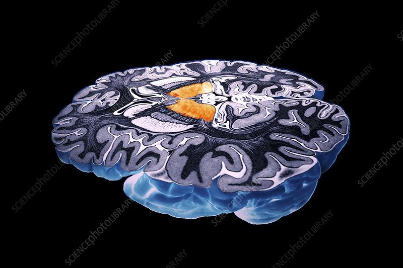 Thalamus of the brain, 3-D MRI scan - Stock Image - P330 ...