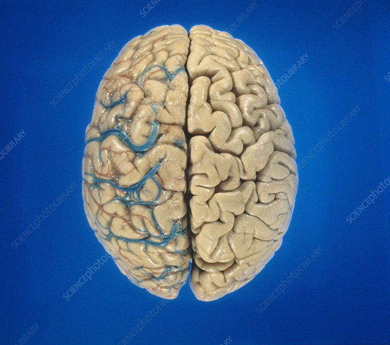 Superior view of brain