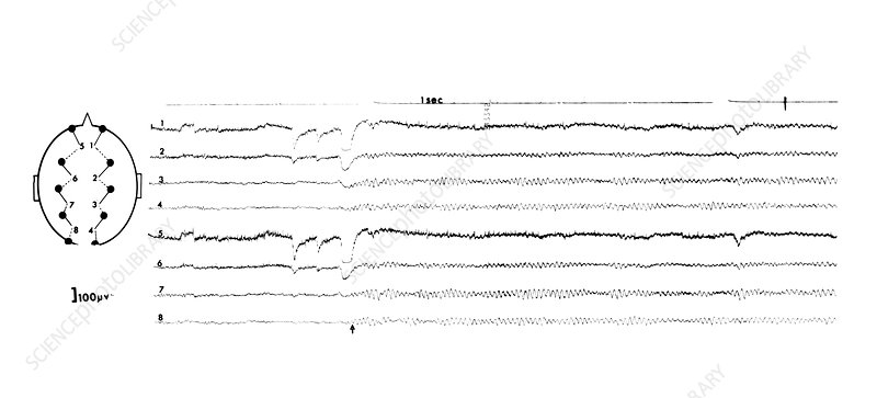 EEG of an alert adult female