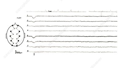 EEG of a drowsy adult
