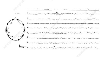 EEG of a normal adult asleep