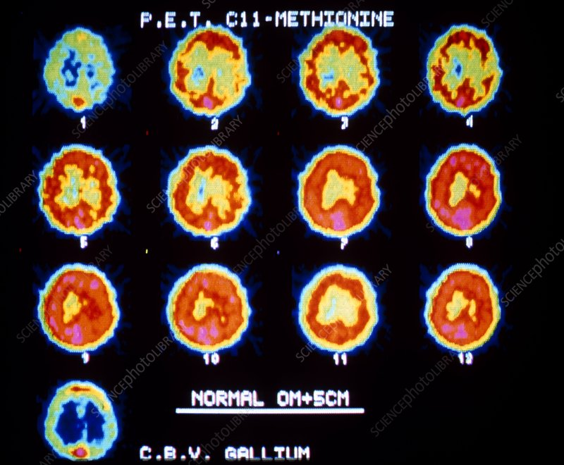 Pet scans showing protein synthesis in the brain