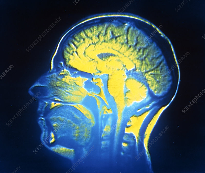Nuclear magnetic resonance image of the human head