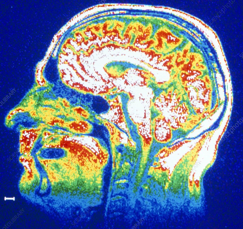 False-colour NMR scan of the head, sagittal slice