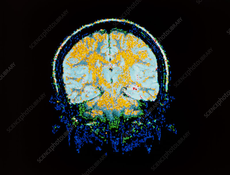 False-colour frontal MRI scan of a child's head