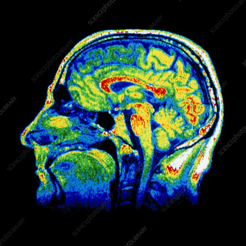 False-colour MRI scan of the head, sagittal slice