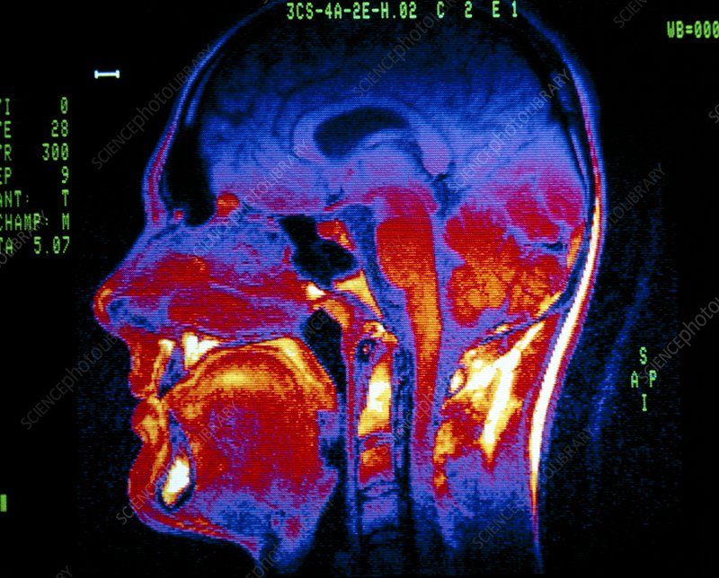 Normal NMR brain scan