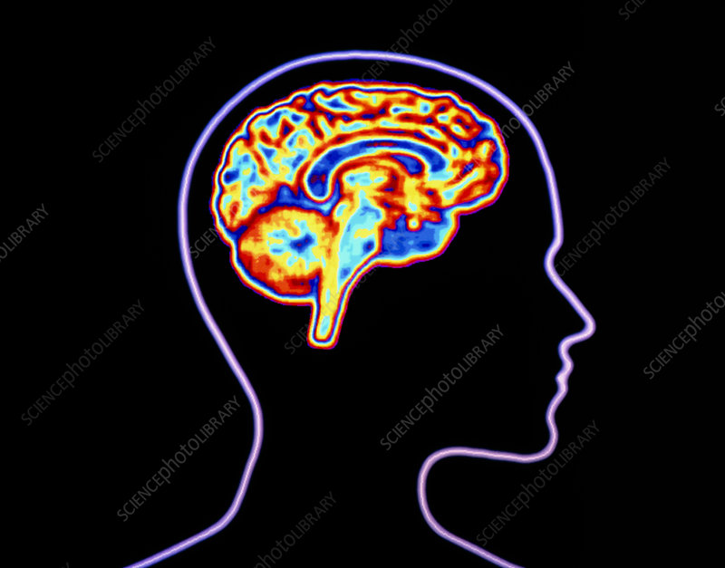 Computer graphic of brain with silhouette of head