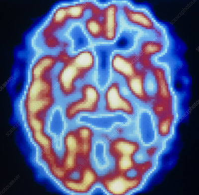 PET scan of brain of normal subject - Stock Image - P332 ...