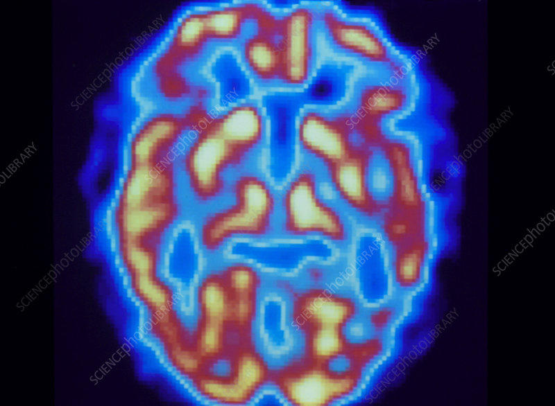 PET scan of brain of normal subject