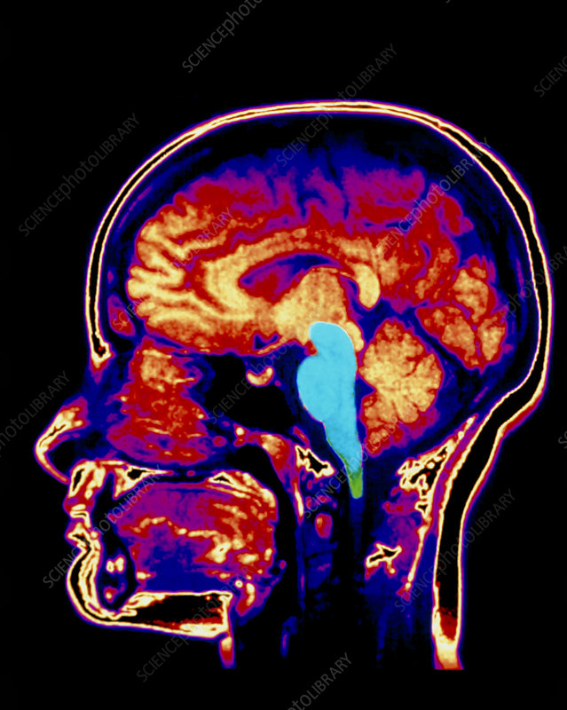 MRI scan of human brain with brainstem highlighted