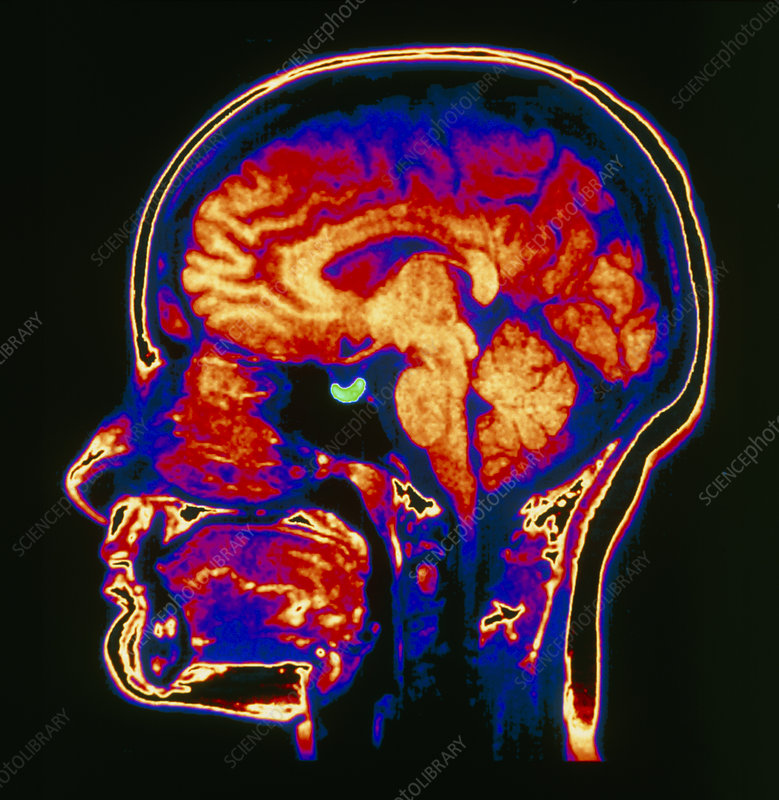 MRI scan of brain with pituitary gland highlighted - Stock ...