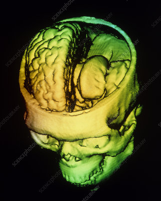F/colour 3-D CT scan of human brain within skull