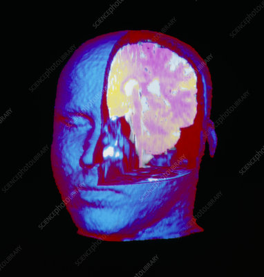Coloured 3-D MRI scan of human brain in the head