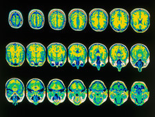 Coloured MRI scans of the brain, horizontal view