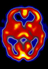 Coloured SPECT scan of a healthy brain