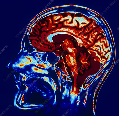 Coloured MRI scan of brain in sagittal se