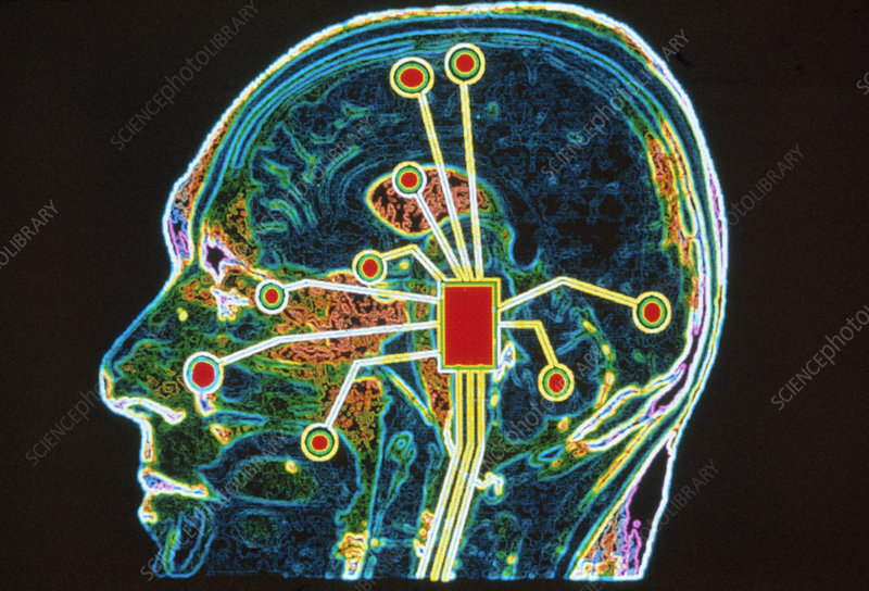 Coloured MRI brain scan with sensory map