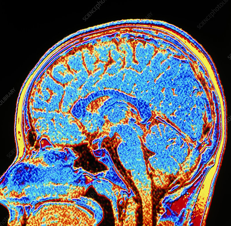 Coloured CT scan of a healthy brain in head