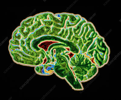 Coloured CT scan of a healthy brain (side view)