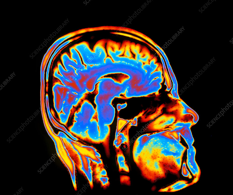 Coloured CT scan of the brain in head (side view)