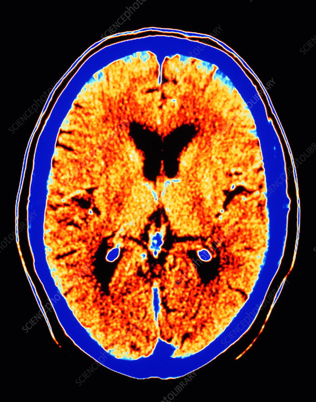 CT scan of section through healthy brain